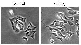 Differentiation of neuroblastoma cells induced by drugs modulating the epigenetic machinery. The treated cells (right panel) show neurites indicative of differentiation.