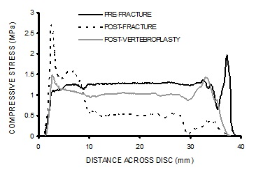 Stress profiles show a marked loss of pressure in the central region (nucleus pulposus) of the intervertebral disc following fracture that is associated with concentrations of compressive stress in the periphery of the disc (annulus).