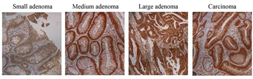 Image of colorectal adenomas and carcinomas