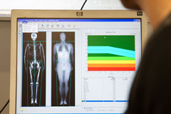 Bone density scan results