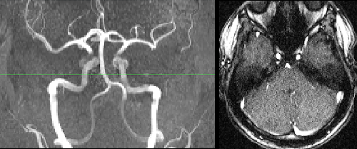 1: Time of Flight Angiogram of the circle of Willis
