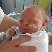 Riley Joyce, the first baby to receive the treatment