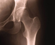 A close-up of a human hip x-ray
