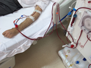 Generic image of a patient undergoing dialysis treatment