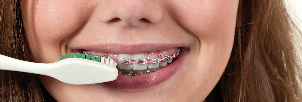 Dental Braces And Periodontal Disease Research