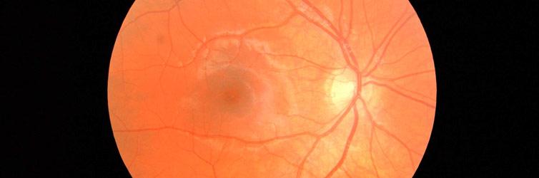 The human retina