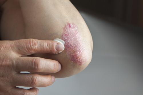 October: The role of genes in eczema | News | University of Bristol