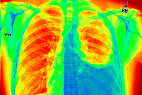 April: cancer condition treatment | News | University of Bristol